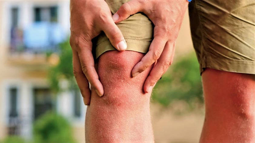 Facts About Arthritis and Joint Pain - Keep Fit Kingdom