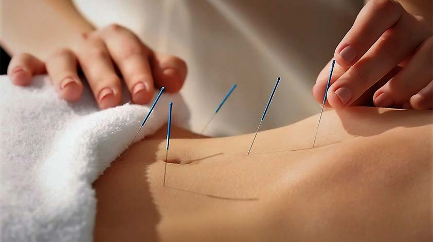 Top 5 Benefits of Acupuncture! - Keep Fit Kingdom