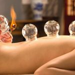 Top 5 Benefits of Cupping - Keep Fit Kingdom