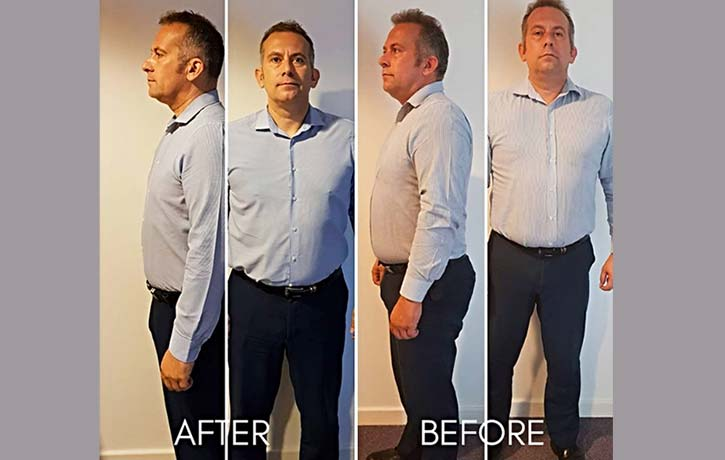 Another before after success story David