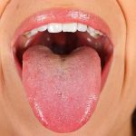 Your Tongue, Your Health 3 Things to Look Out For! -Keep Fit Kingdom