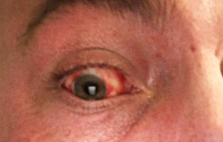 Martin Tye bloodshot eye after the 550kg deadlift