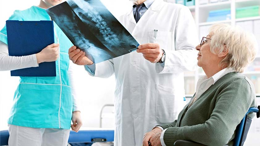 Osteoporosis 4 Risk Factors You MUST Act On NOW - Keep Fit Kingdom